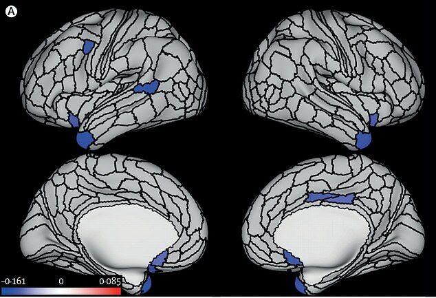 Знімки мозку учасників дослідження
