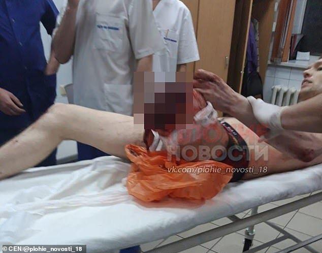 Росіянин у лікарні з відпиляною ногою