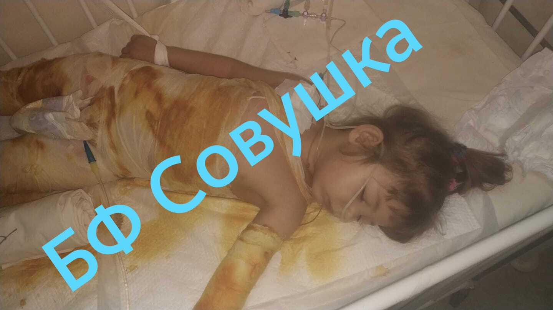 В Днепре трехлетний ребенок сел в ведро с кипятком