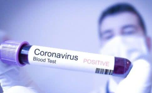Коронавірус за симптомами не відрізняється від інших респіратоних вірусів