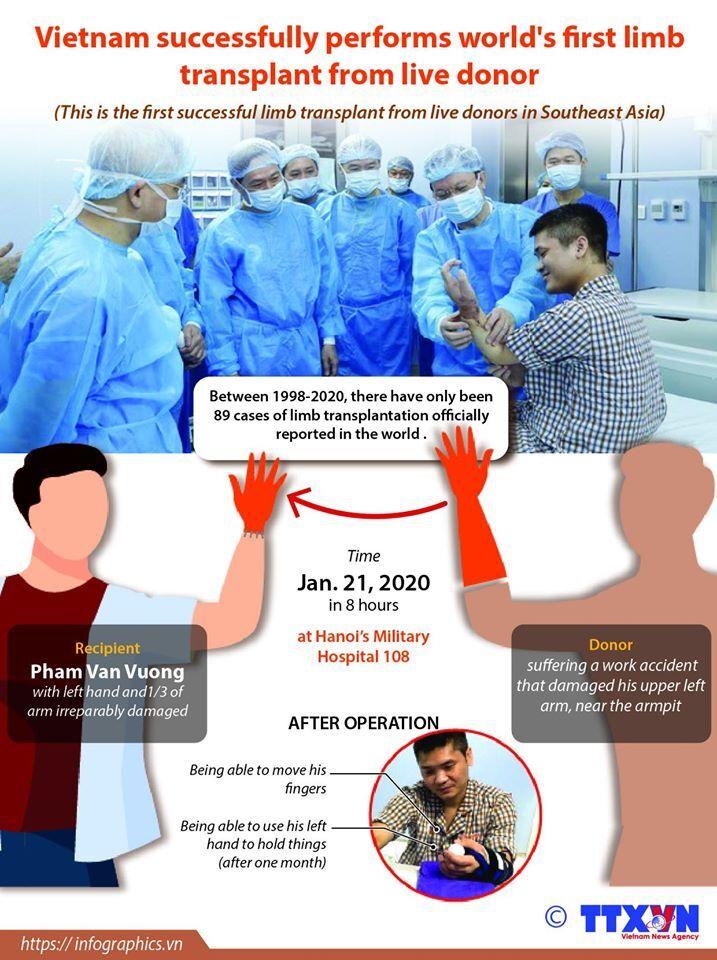 Операція з пересадки кисті руки