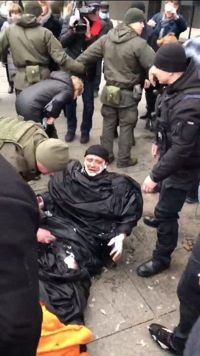 Олександр Бурлаков отримав опіки