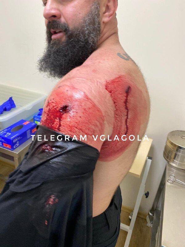 Раненый Пашкуляк