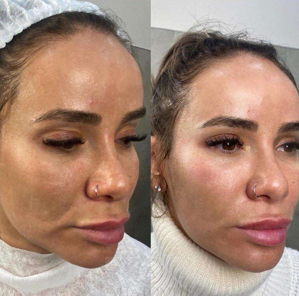 Як виглядає Айза Анохіна без макіяжу: фото жахнули мережу