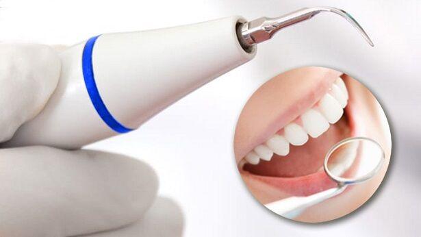 90% українців потребує послуг стоматолога: як уберегти свої зуби