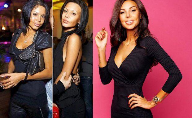 Оксана Самойлова до і після пластики