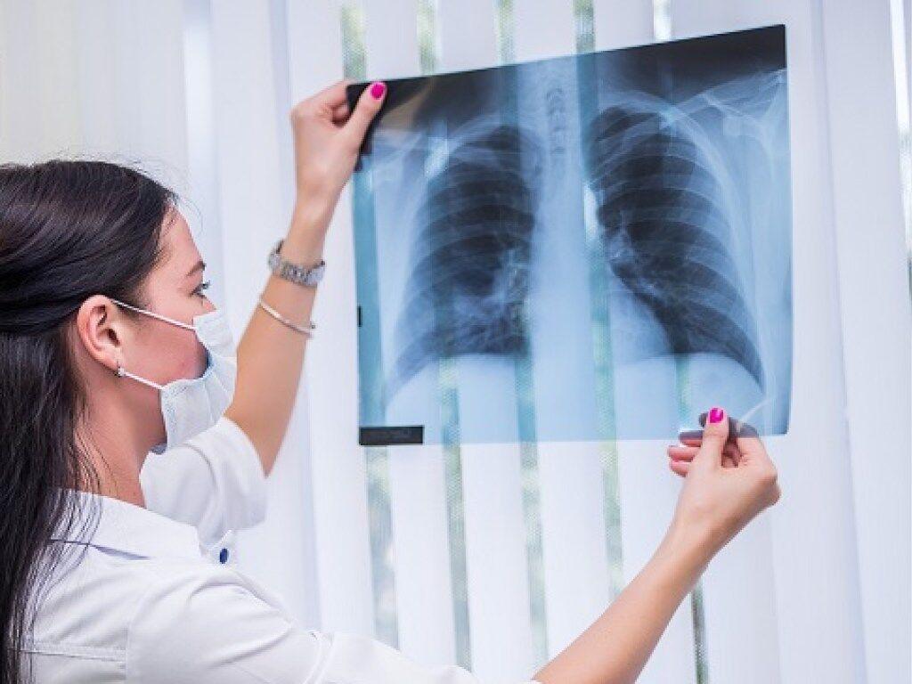 Легені хворого на туберкульоз