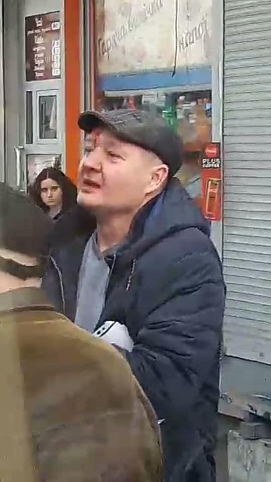 В Киеве в маршрутке мужчина разбил девушке нос из-за замечания