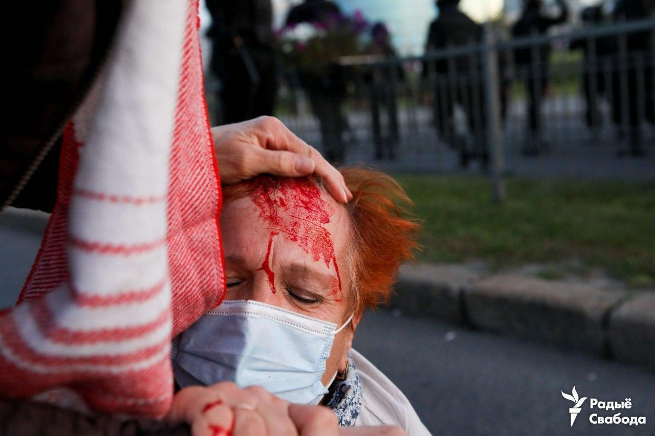 Первые пострадавшие в результате жестких действий ОМОНа.