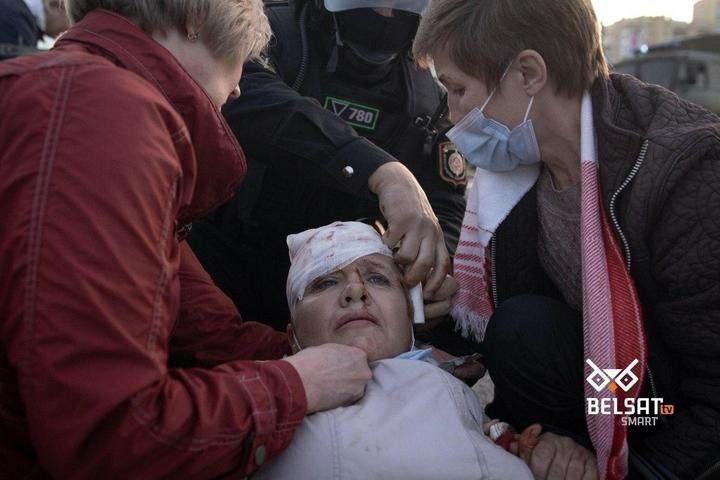 Раненая на протесте в Беларуси
