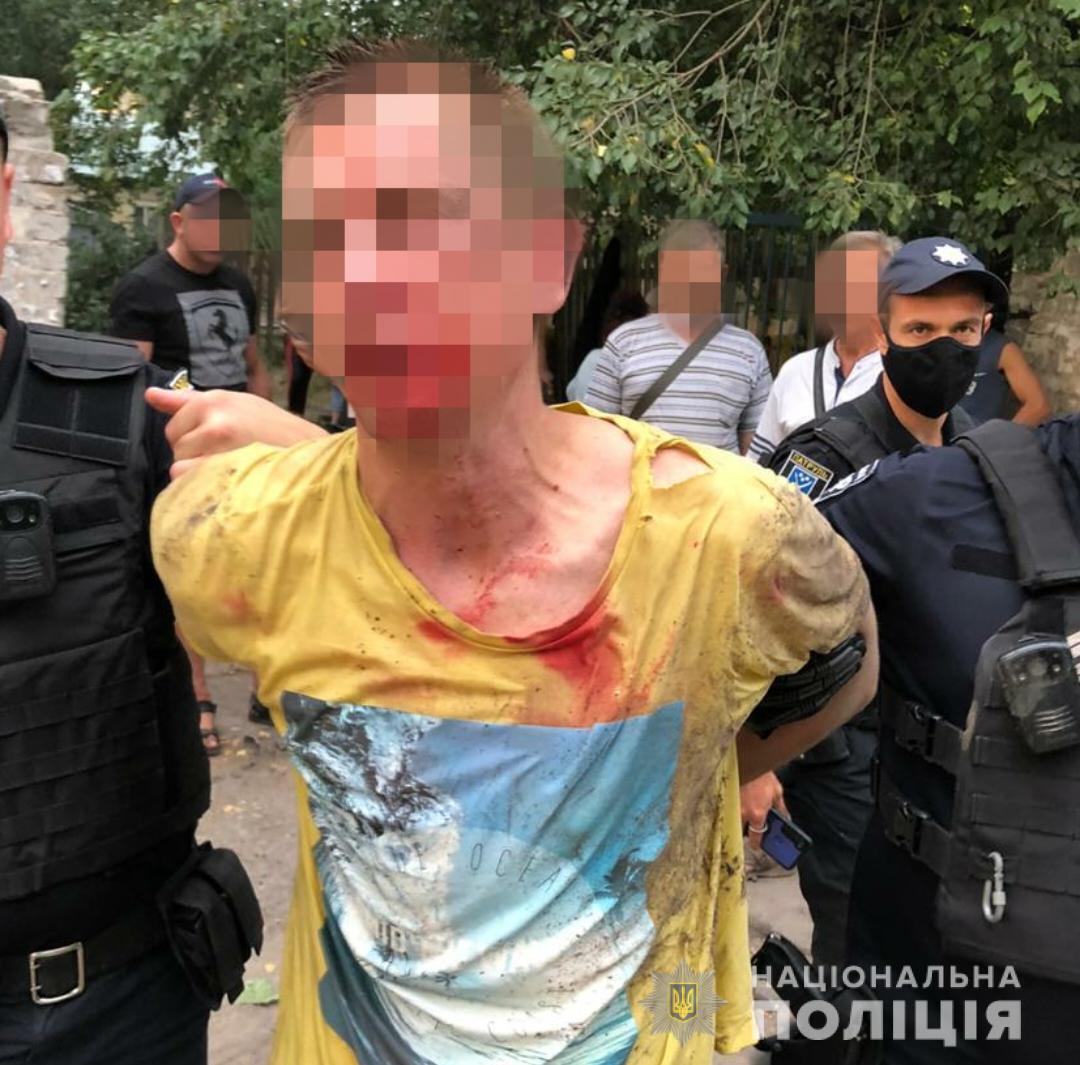 В Днепре мужчина бросил гранату в людей. Фото пресс-службы ГУ НП в Днепропетровской области