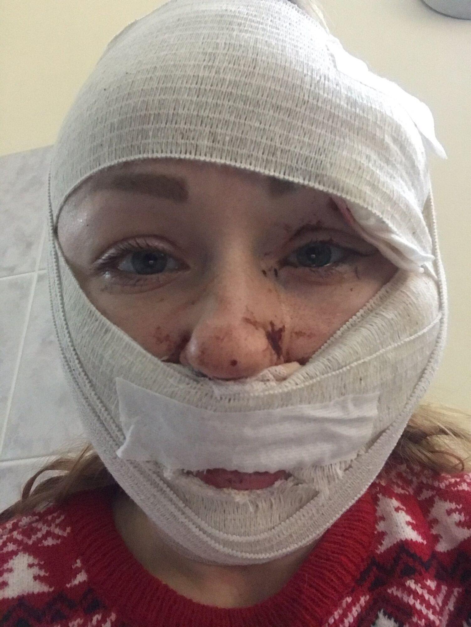 Лице Анни паралізовано