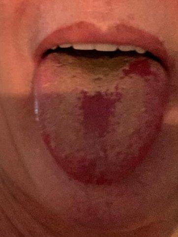 """""""Ковидный язык"""", по словам британского эпидемиолога"""