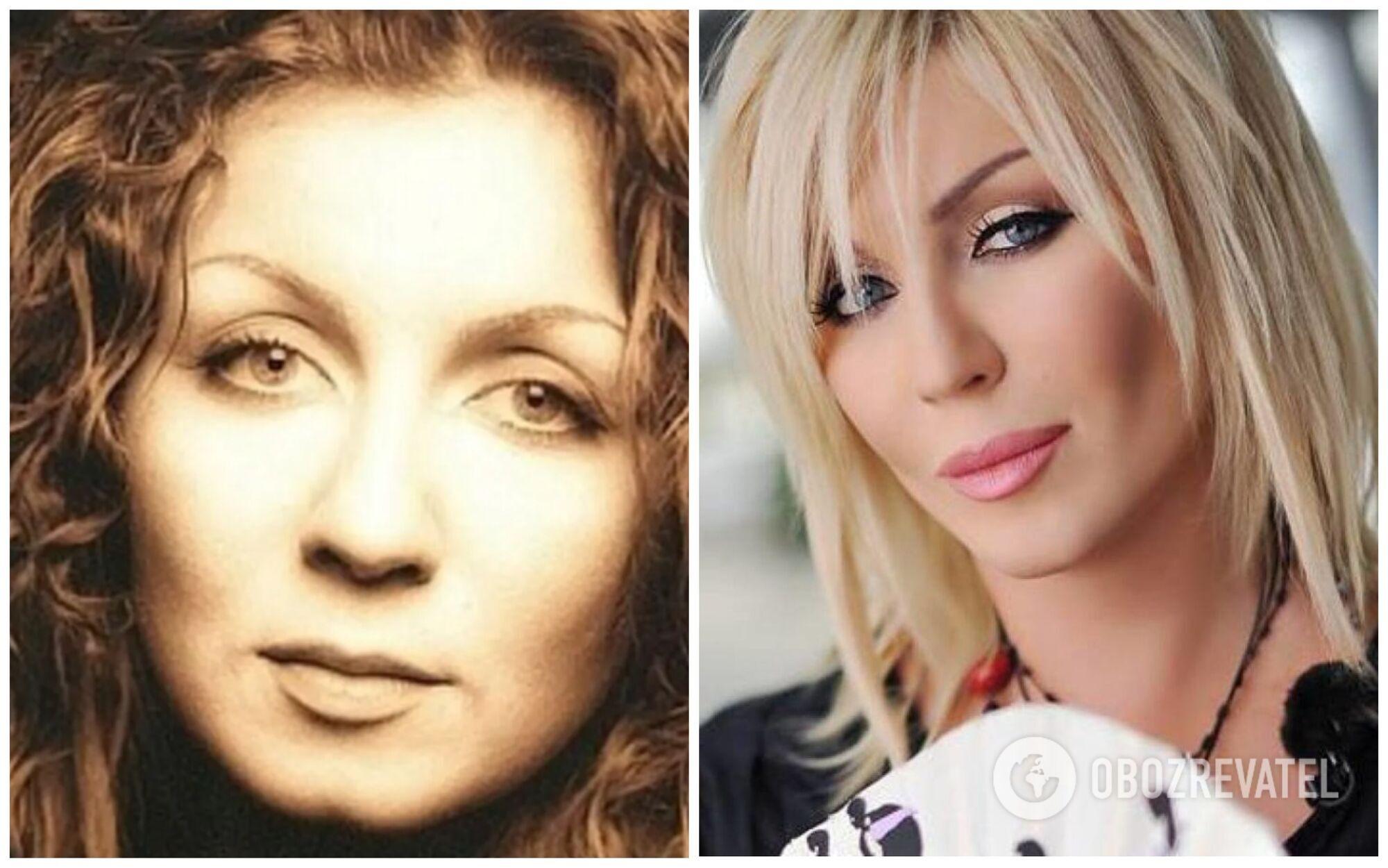 Ірина Білик до і після пластичних операцій.