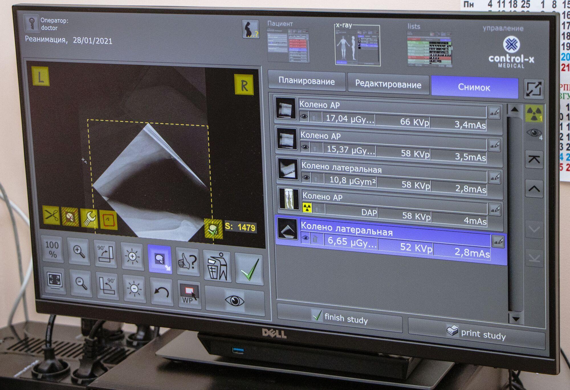Среди преимуществ нового оборудования – дозы облучения для пациента в десять раз меньше