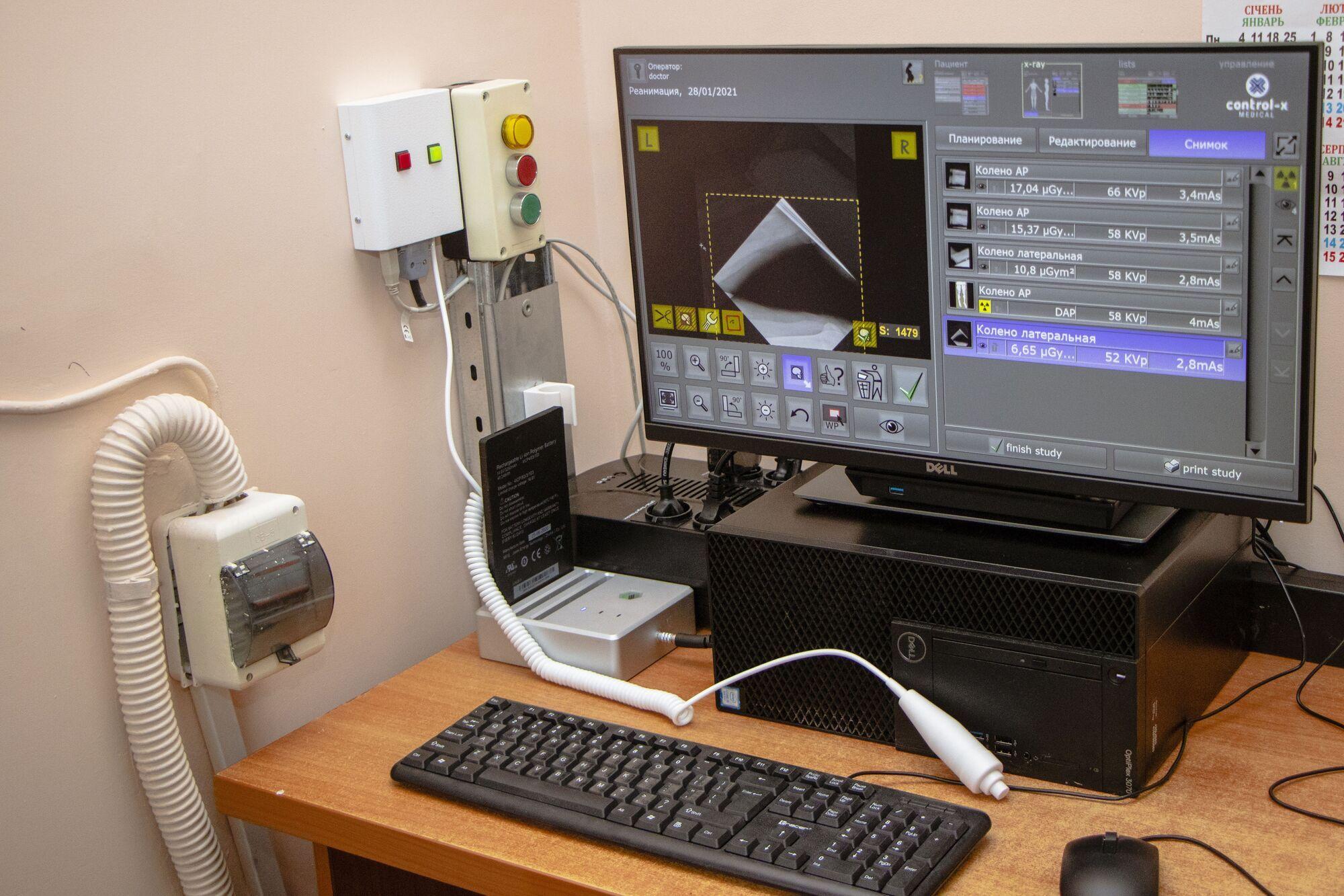 На приобретение рентгенаппарата из муниципального бюджета выделили 3,7 млн грн