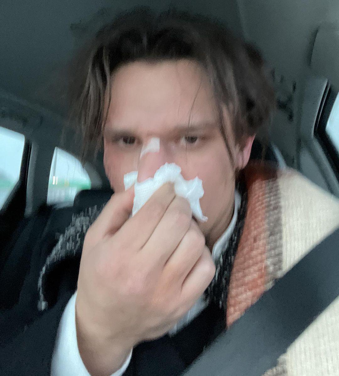 Тарасу Цимбалюку сломали нос: фото.