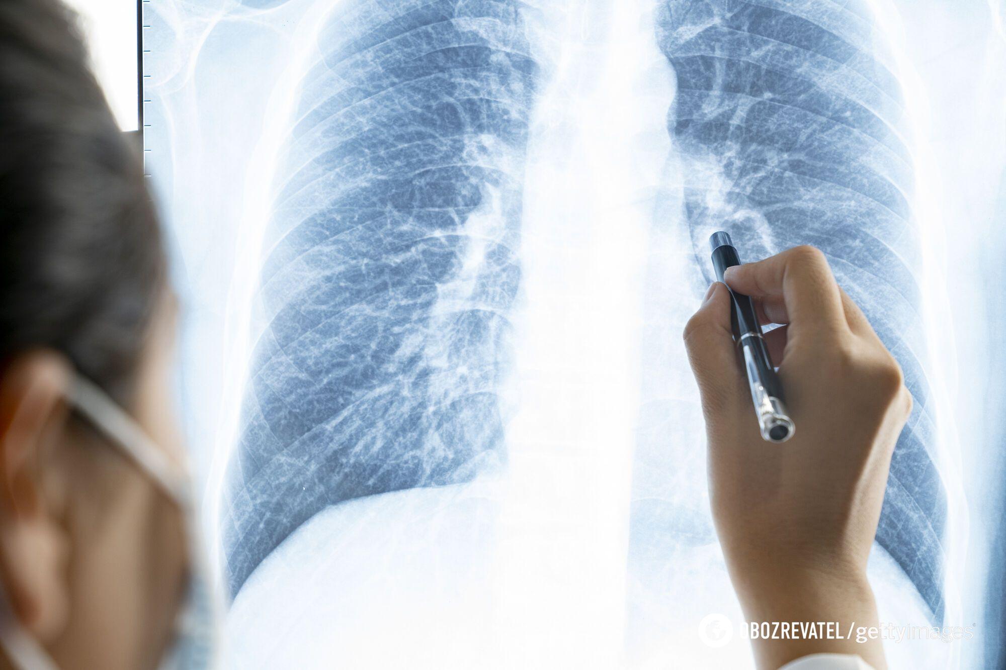 Среди больных почти нет вакцинированных пациентов
