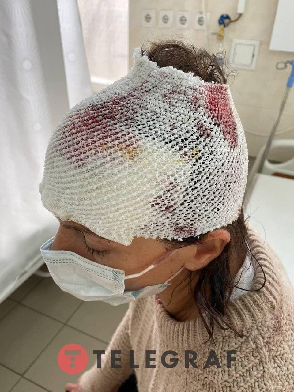 На голове пострадавшей остались раны