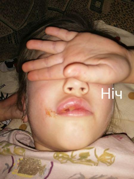 Ребенку занесли инфекцию.