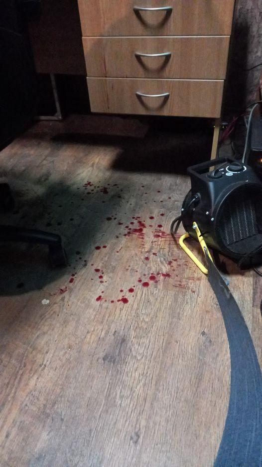 Фото с места нападения на журналиста