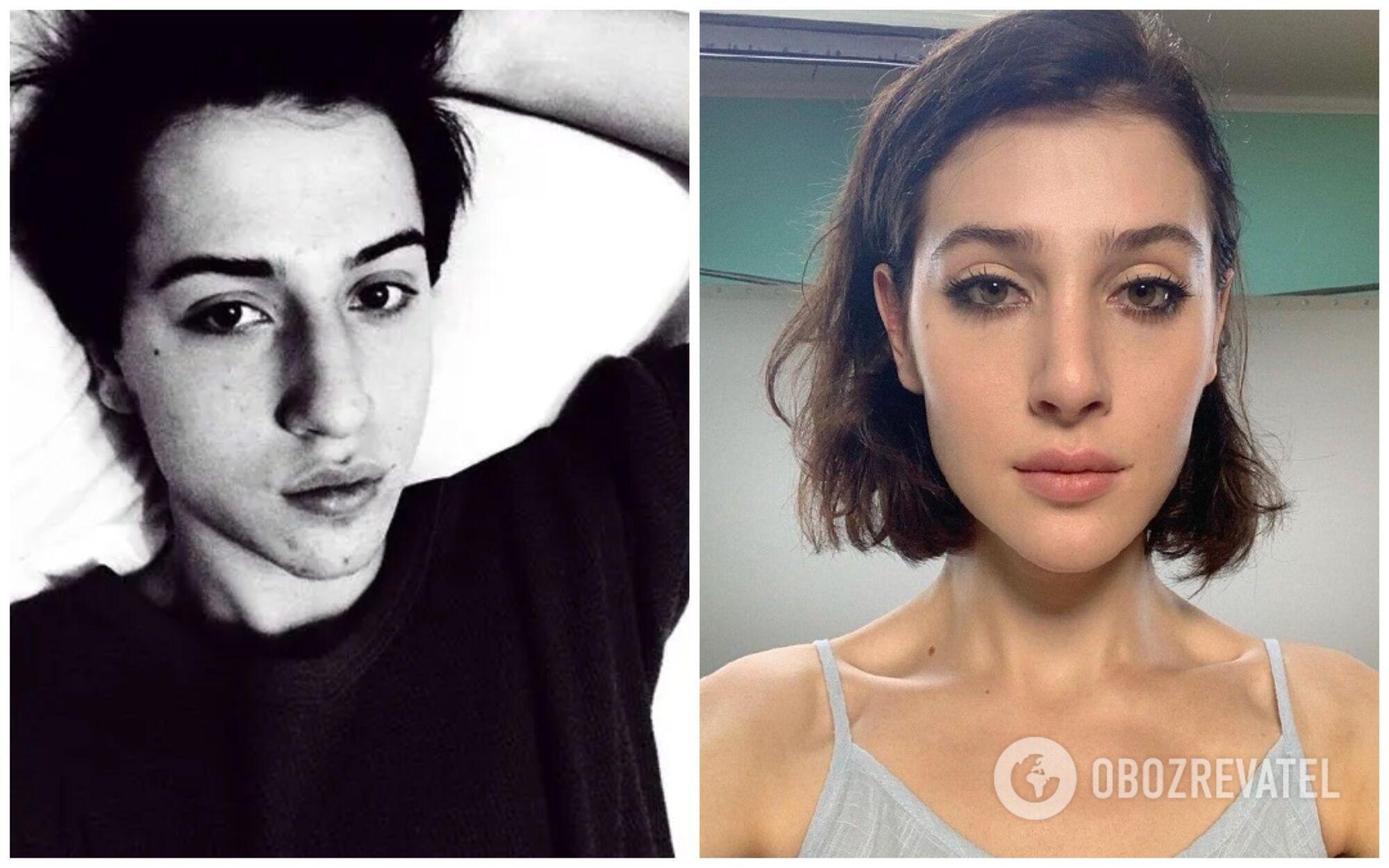 Софи Беридзе до и после смены пола