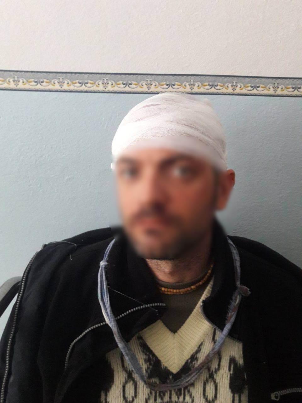Журналист опубликовал фото подозреваемого.