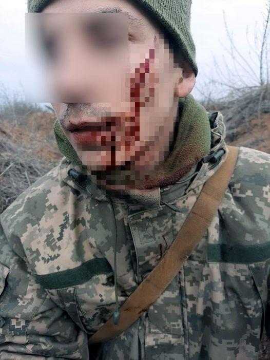 Воин получил ранение щеки.