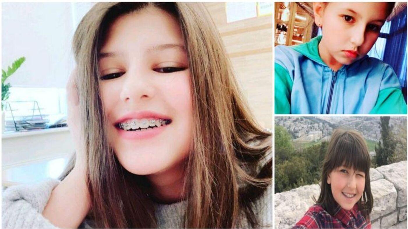 Александра Зеленская некоторое время носила брекеты