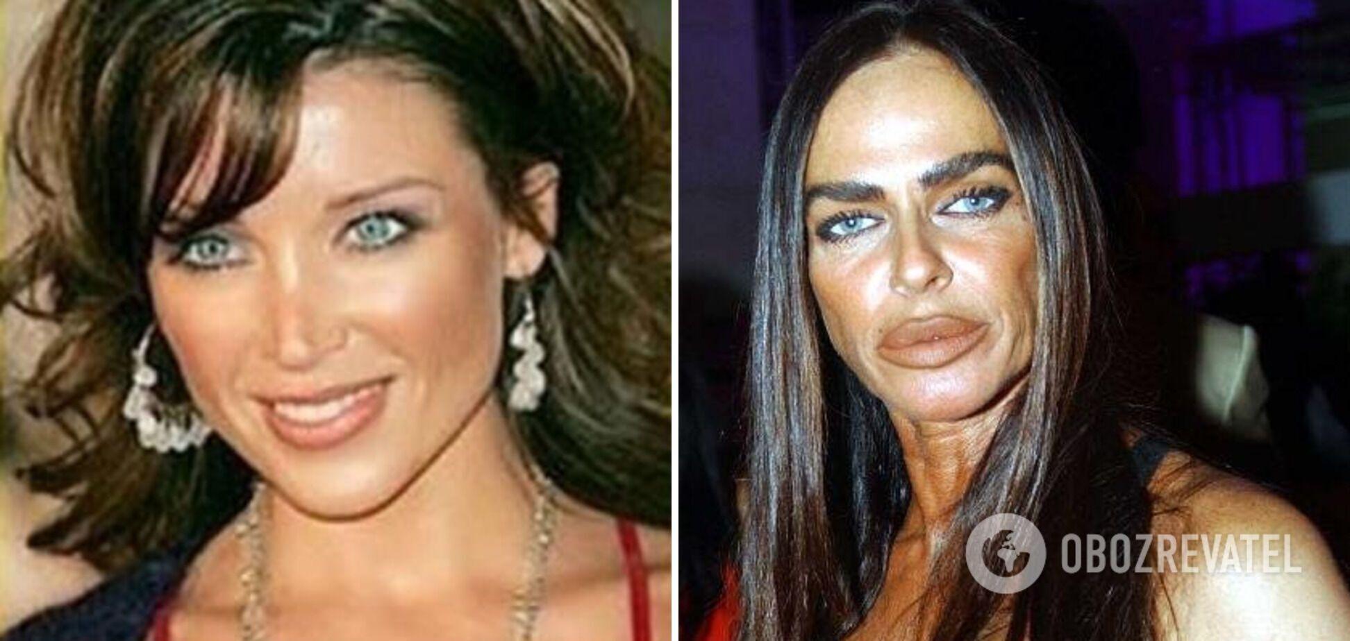 Мікаела Романіні знівечила своє обличчя невдалою пластикою.