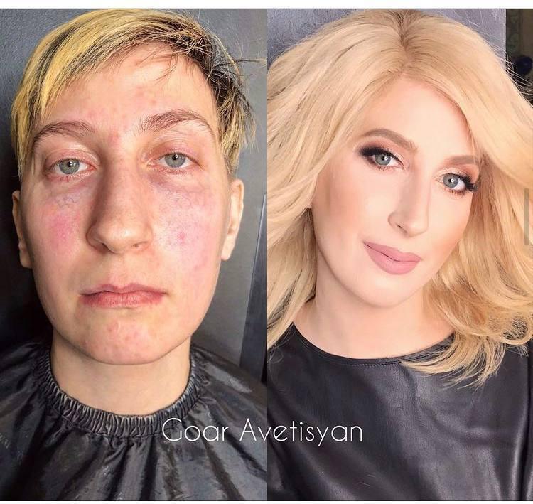 Трансформація важкохворої жінки за допомогою макіяжу