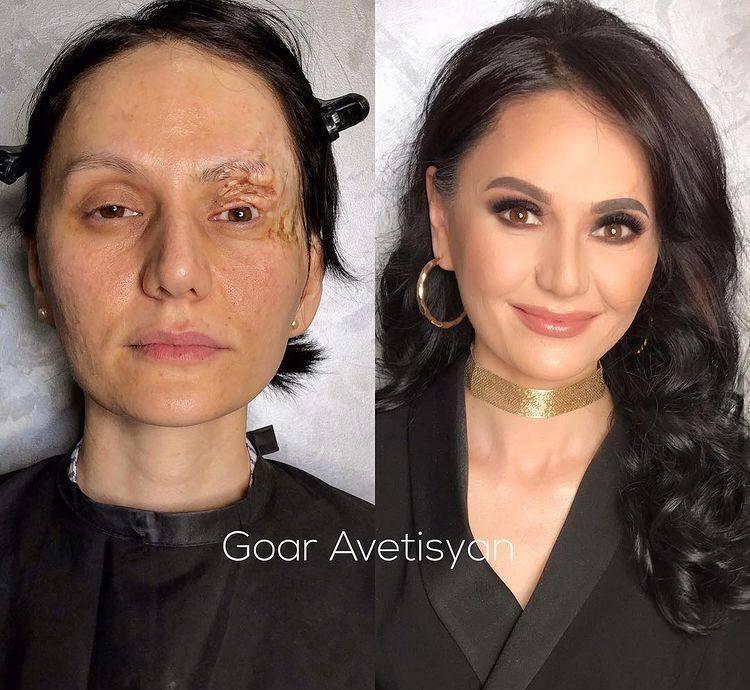 Макіяж проблемної шкіри обличчя