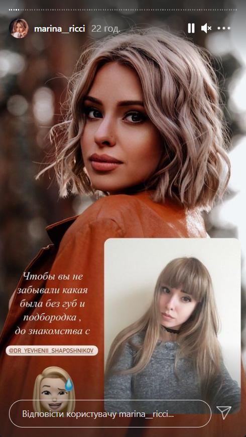 Марина Манюненко до и после пластики
