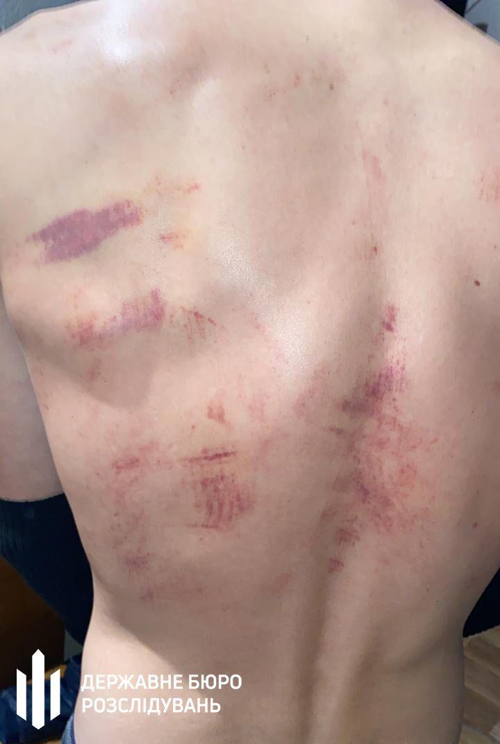У пострадавшего - множественные ушибы мягких тканей.