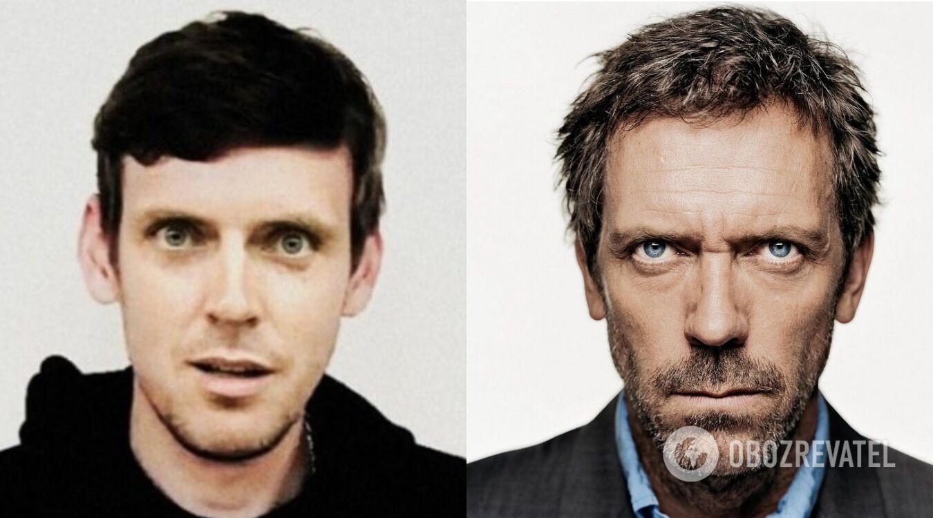 """Как выглядел Хью Лори в молодости и после выхода сериала """"Доктор Хаус"""""""
