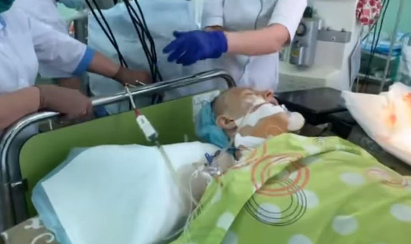 Пациент после пересадки органа.