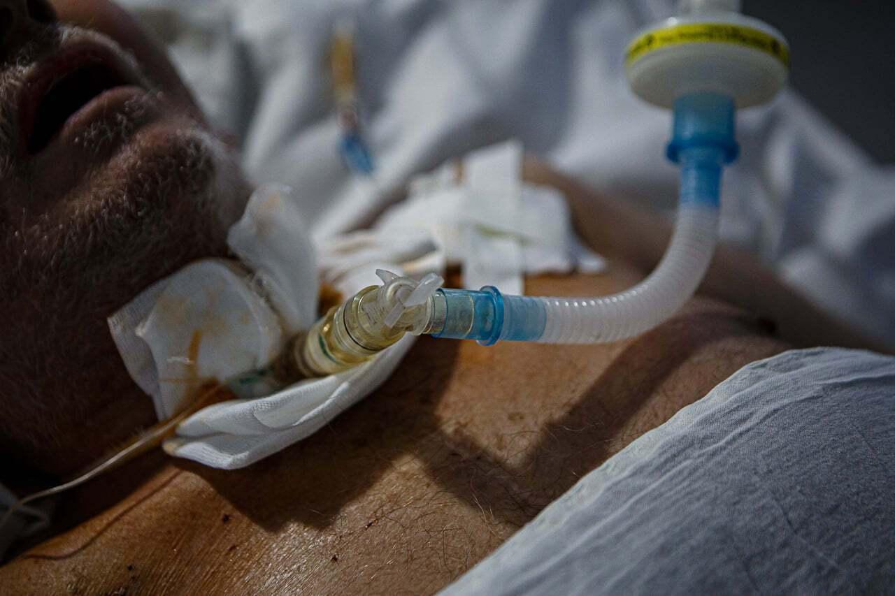 Пацієнт на кисневому апараті у COVID-відділенні Центру легеневих хвороб