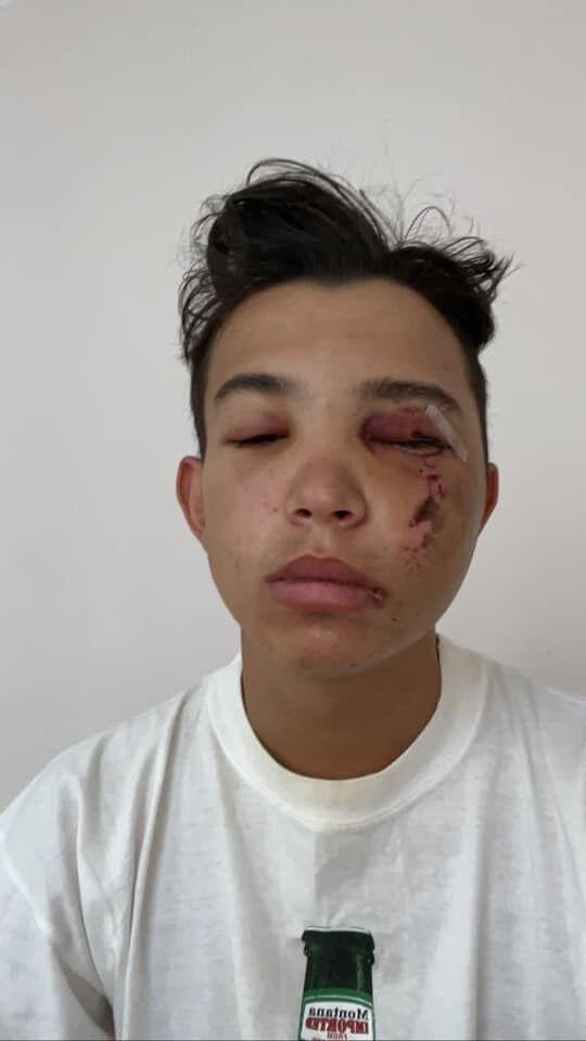 Син Кучеренка постраждав в аварії.