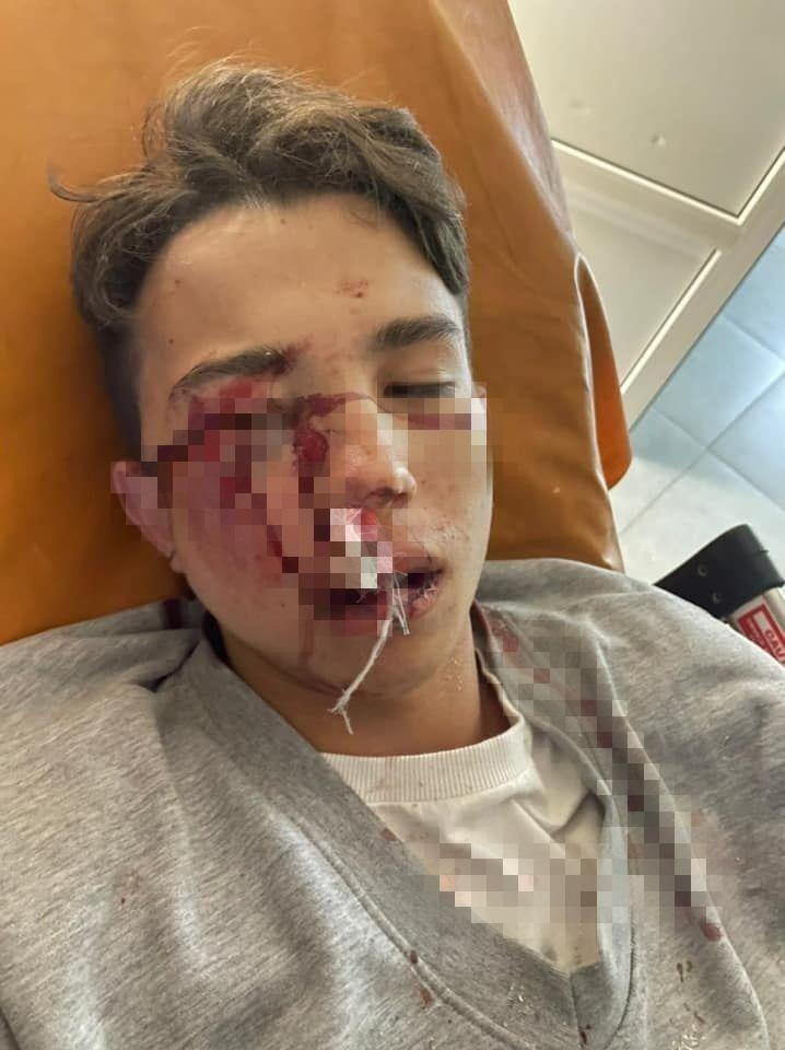 Син Кучеренка після аварії.