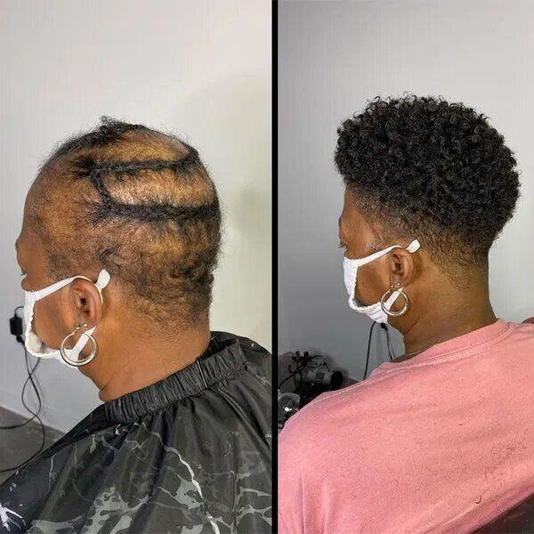 Женщине нарастили волосы.