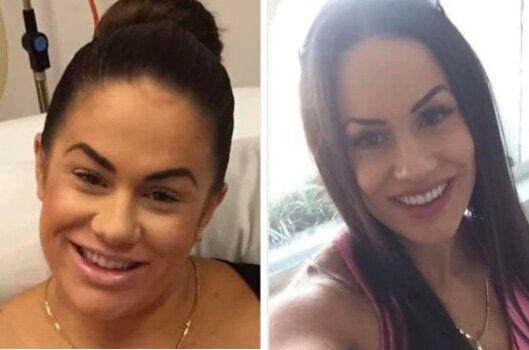 Мелисса Тимме изображена на фото до и после похужения.