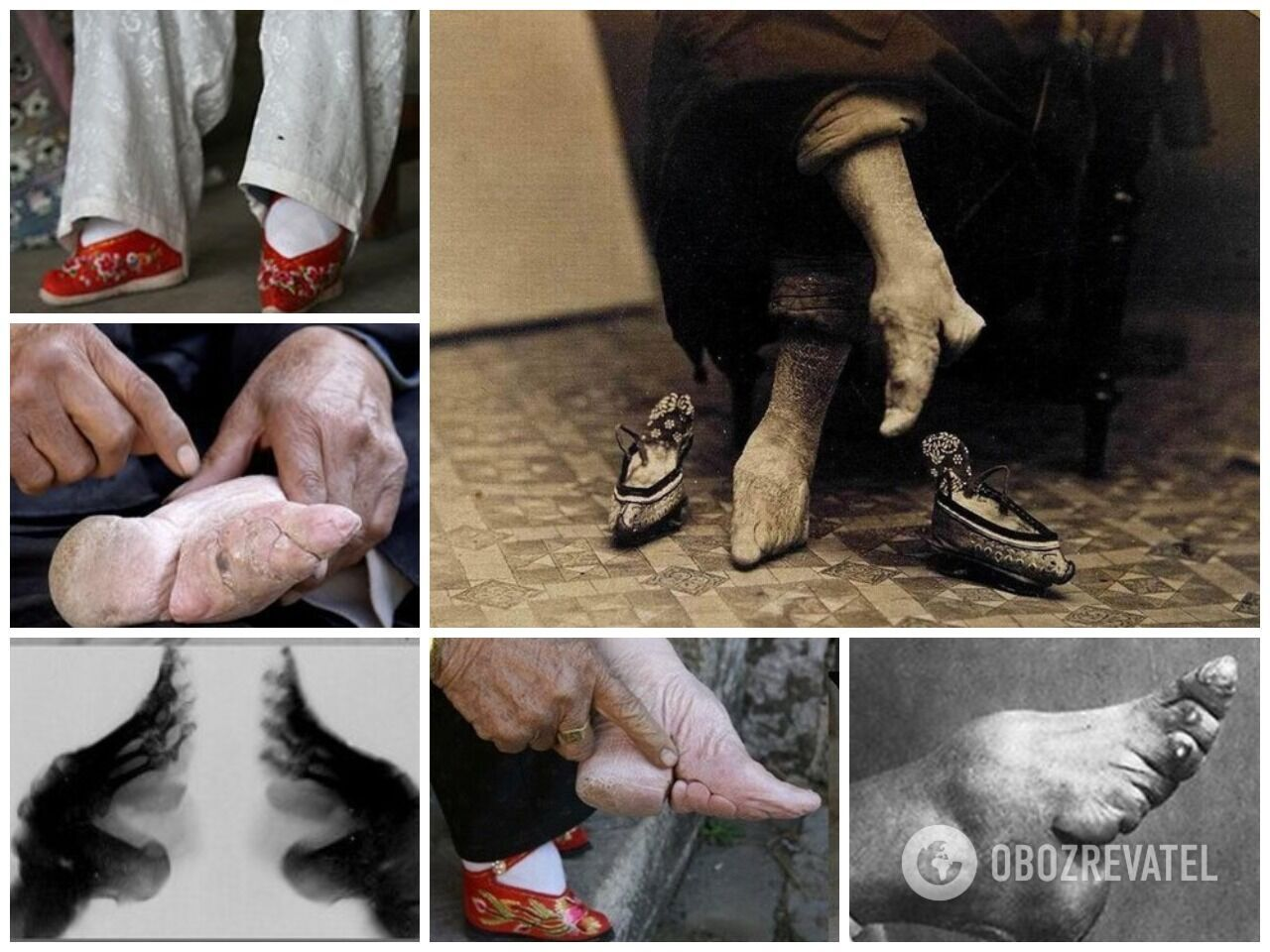 5-летним девочкам в древнем Китае туго бинтовали стопы, чтобы нога не увеличивалась в размере