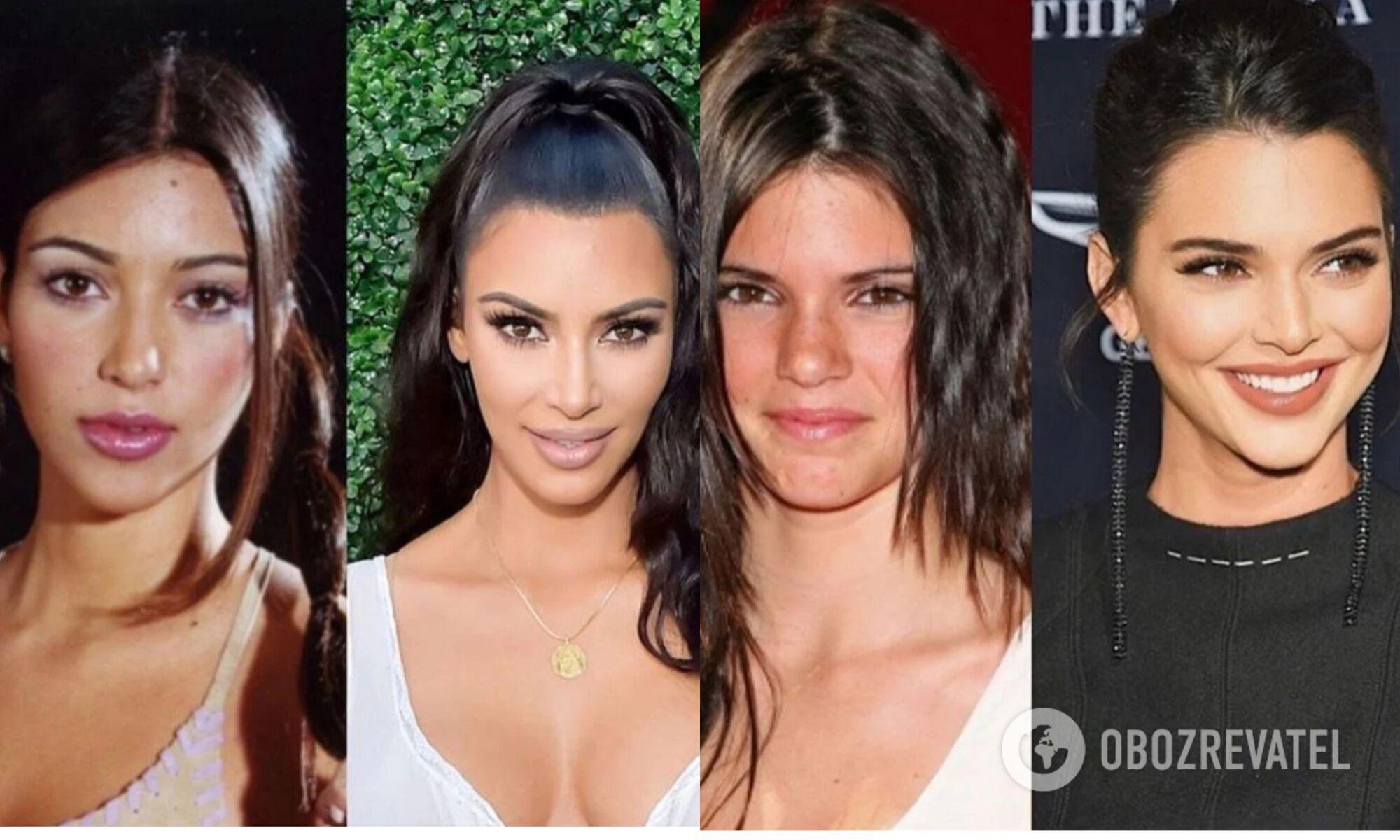 Ким Кардашьян и Кендалл Дженнер пересадили себе волосы со лба и висков, чтобы сделать лицо выразительнее.
