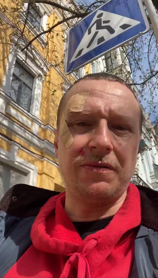 Винтонива избили за замечание о ПДД.