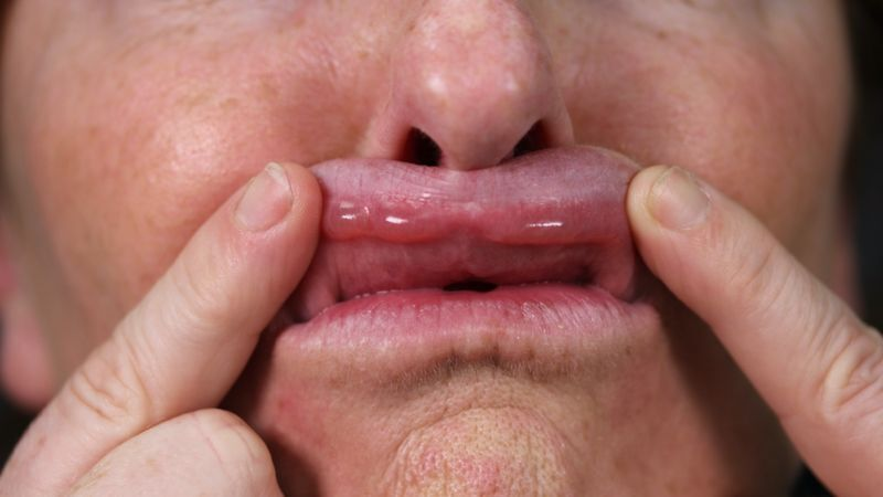 Материал ввели не в ту часть губы