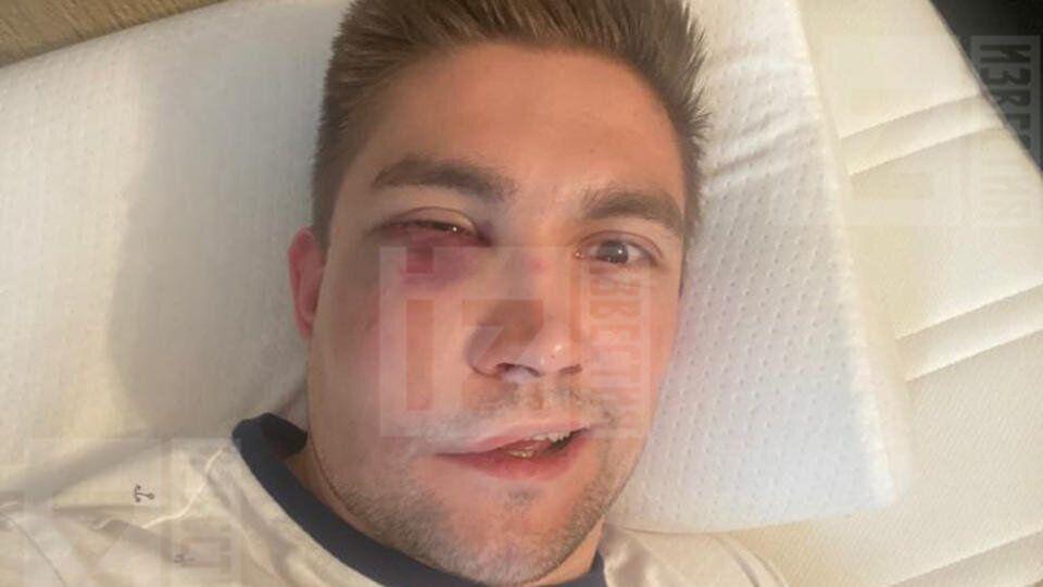 Лицо Кевина Антипова после избиения