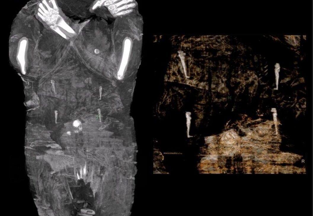 Снимок мумии.
