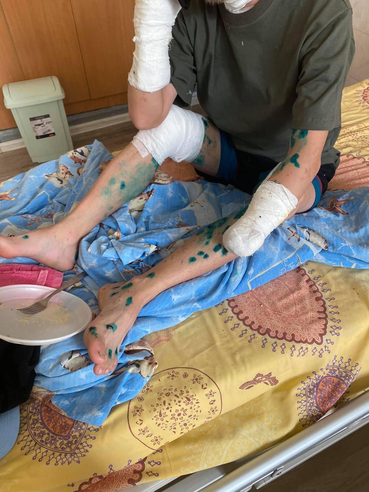 Ситуация на фронте очень обостряется: в госпиталях много тяжелораненых