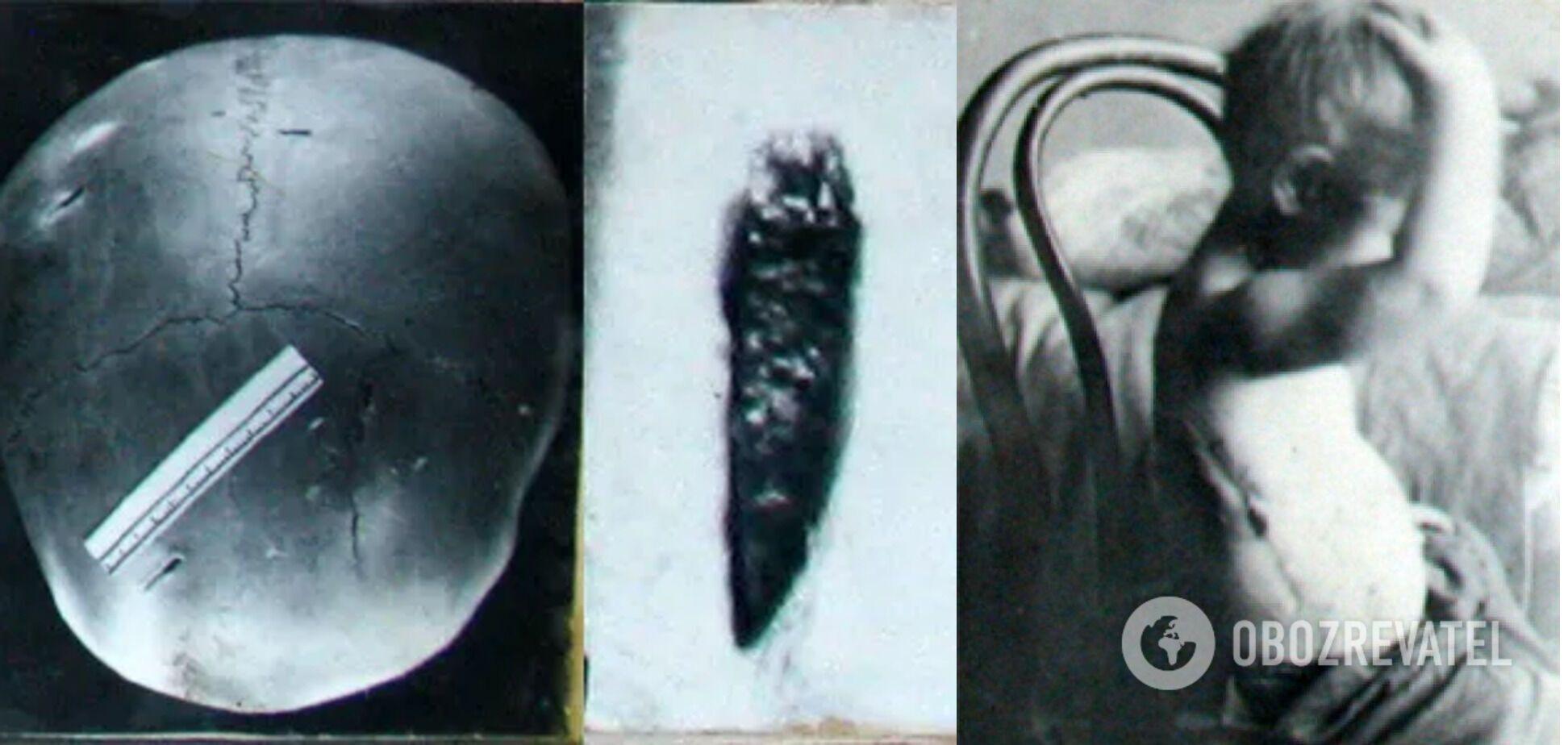 Обломок ножа в черепе первой жертвы Винничевского и последствия нападения маньяка на теле выжившей Али Губиной
