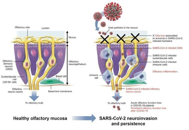Механізм короткочасної і довготривалої аносмії під час COVID-19